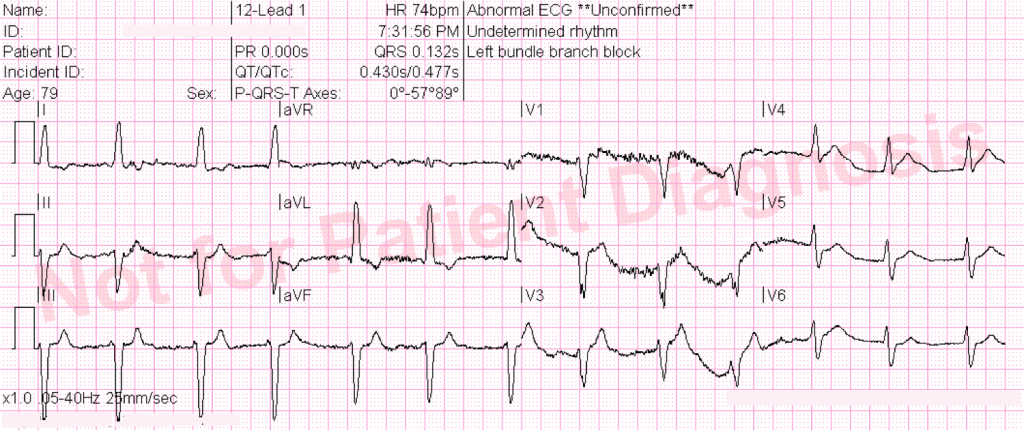 79 year old with chest pain