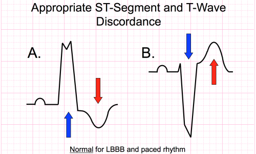Making Sense of Sgarbossa's Criteria – Chest Pain and Left Bundle Branch Block – Part 1