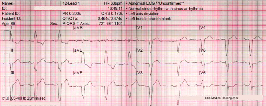 Normal Biphasic QRS