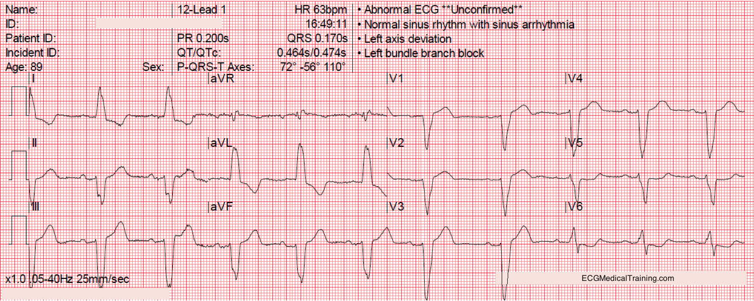 Left bundle branch block to review the rules for left bundle branch