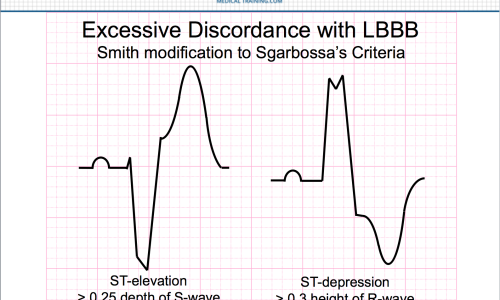 Making Sense of Sgarbossa's Criteria – Chest Pain and Left Bundle Branch Block – Part 3