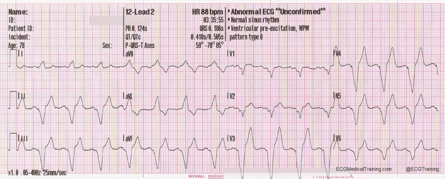 Wolff Parkinson White Syndrome Part 1 Ecg Medical Training