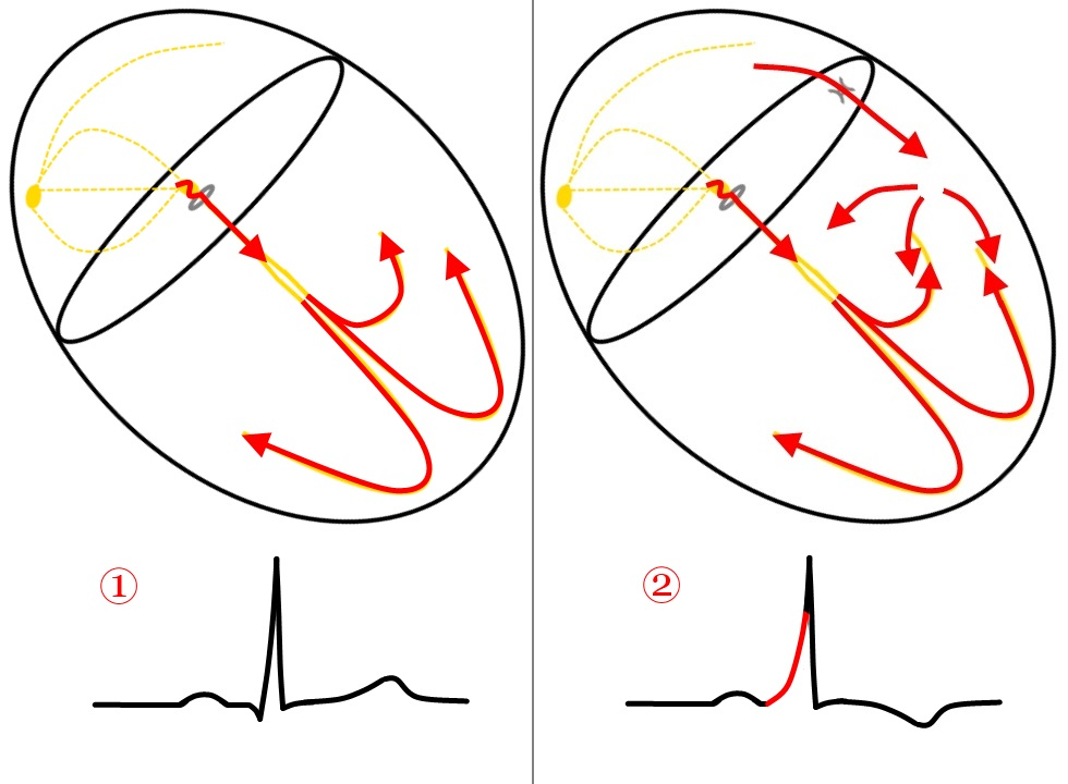 Figure 1. Normal conduction (Example 1) and conduction with an accessory pathway (Example 2)
