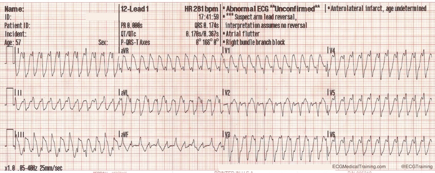 Large block method to calculate heart rate ecg medical training heart rate 300 1to1atrialflutter nvjuhfo Images