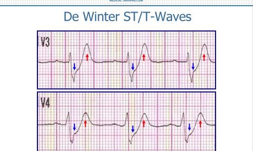 De Winter ST/T-Waves