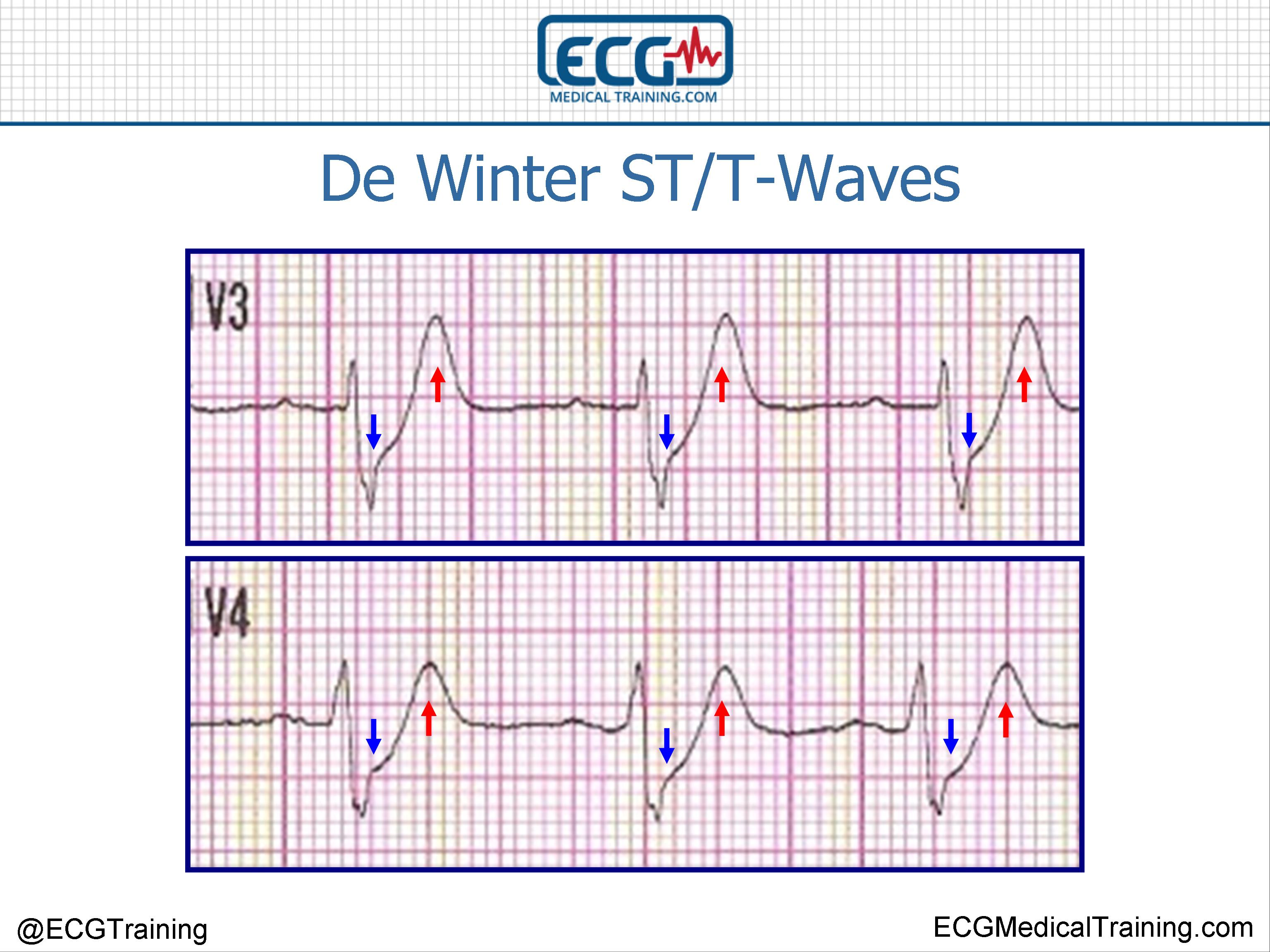 De Winter St T Waves Ecg Medical Training Electrocardiogram Diagram Electrocar Diogram Wineter Graphic