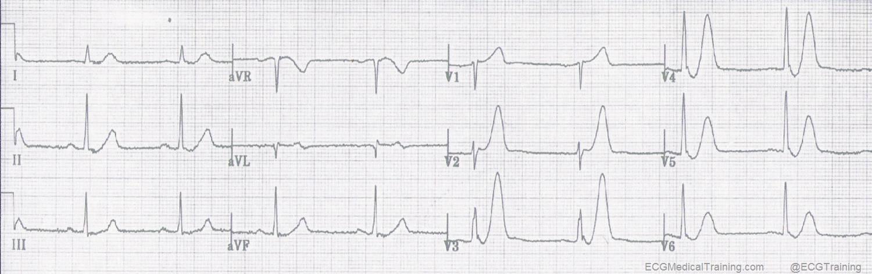 De Winter ST/T-Waves - ECG Medical Training