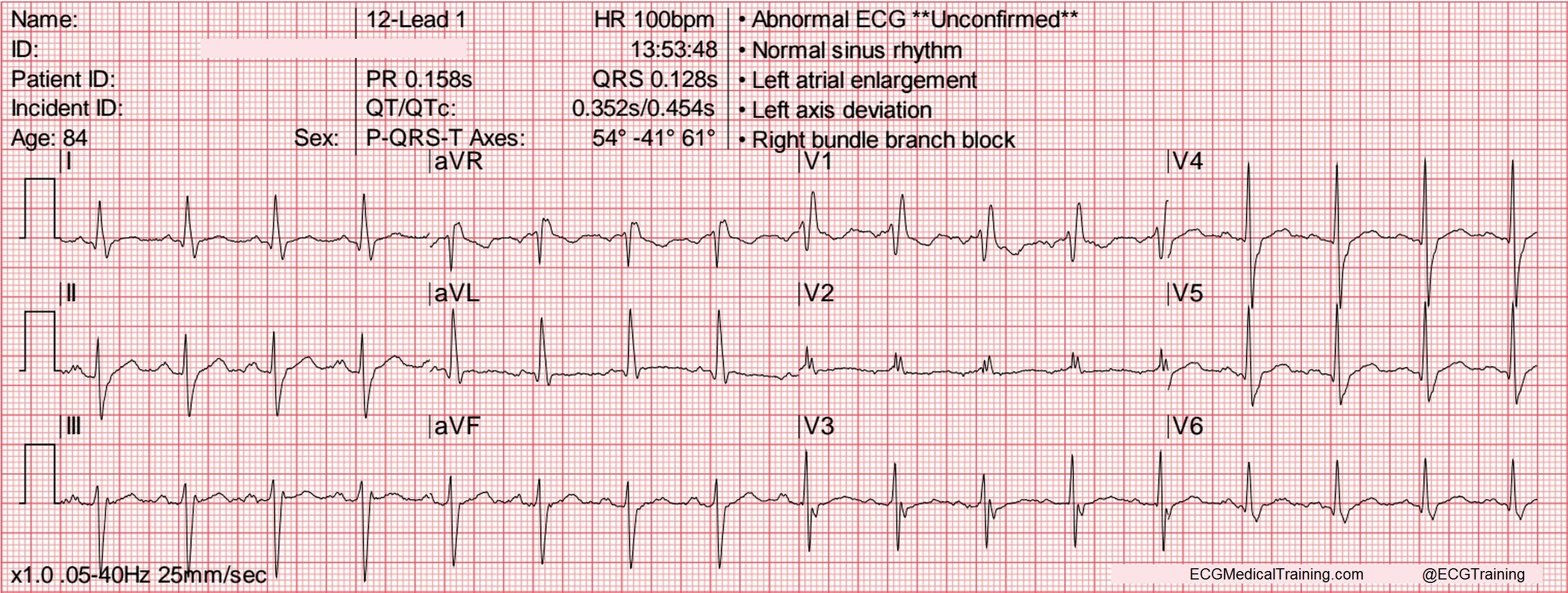 Heart rate on ekg strip impossible