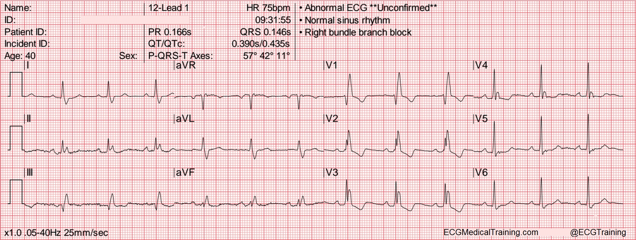 Large block method to calculate heart rate ecg medical training heart rate 75 wm nvjuhfo Images