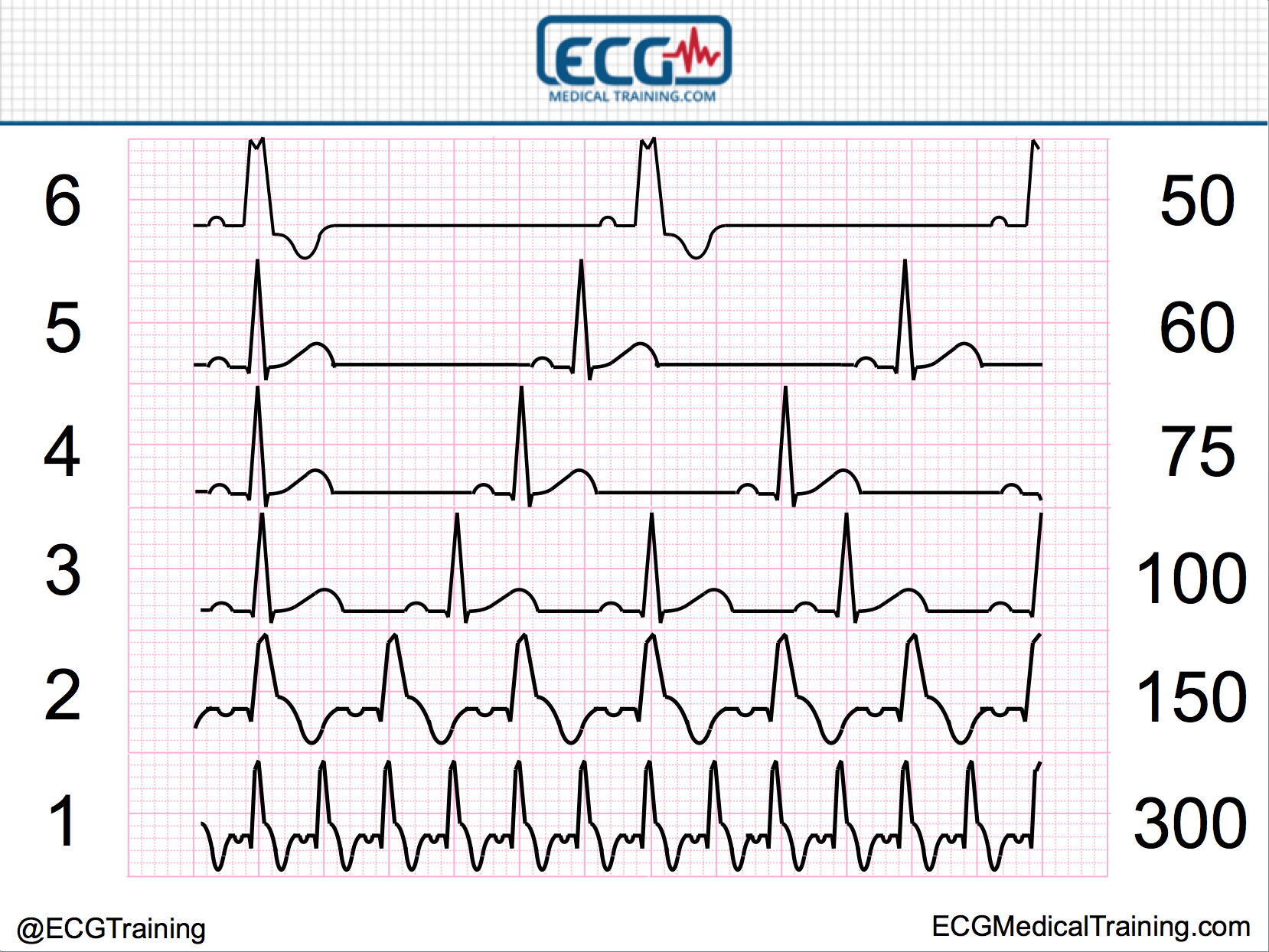 Large block method to calculate heart rate ecg medical training large block method heart rate ccuart Image collections
