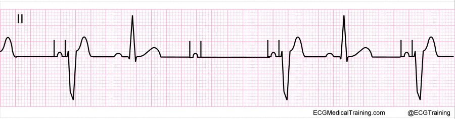 basic principles of pacing Cardiac pacemaker implantation involves the  the basic principles for reducing the risk of  the two basic features of the pulse generator are sensing and pacing.
