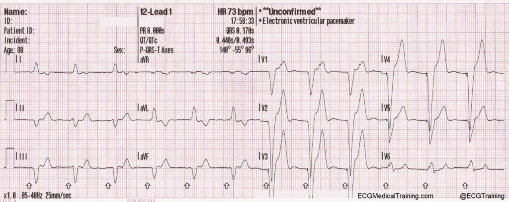 pacemaker syndrome wm