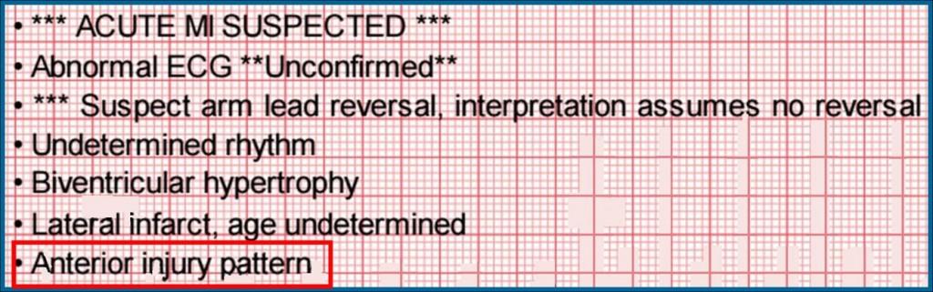 interpretive statement markup