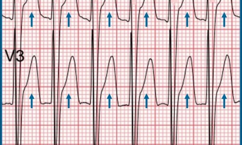 Should you activate the cardiac cath lab?