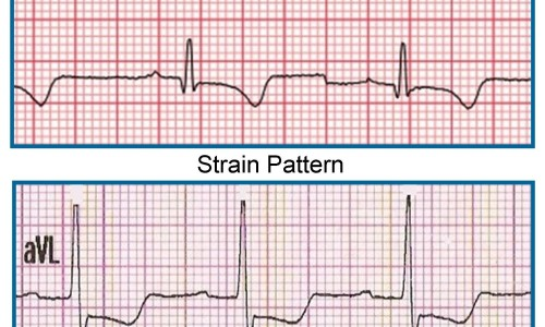 Importance of Lead aVL in STEMI Recognition