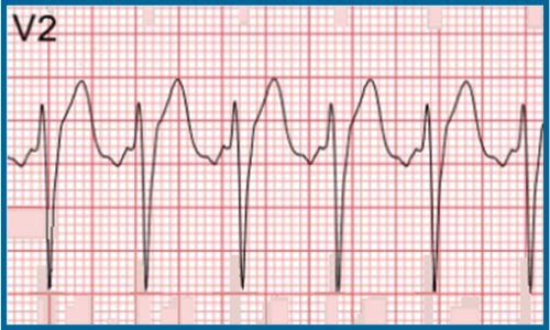 Usefulness of the QRS/T angle when diagnosing acute STEMI