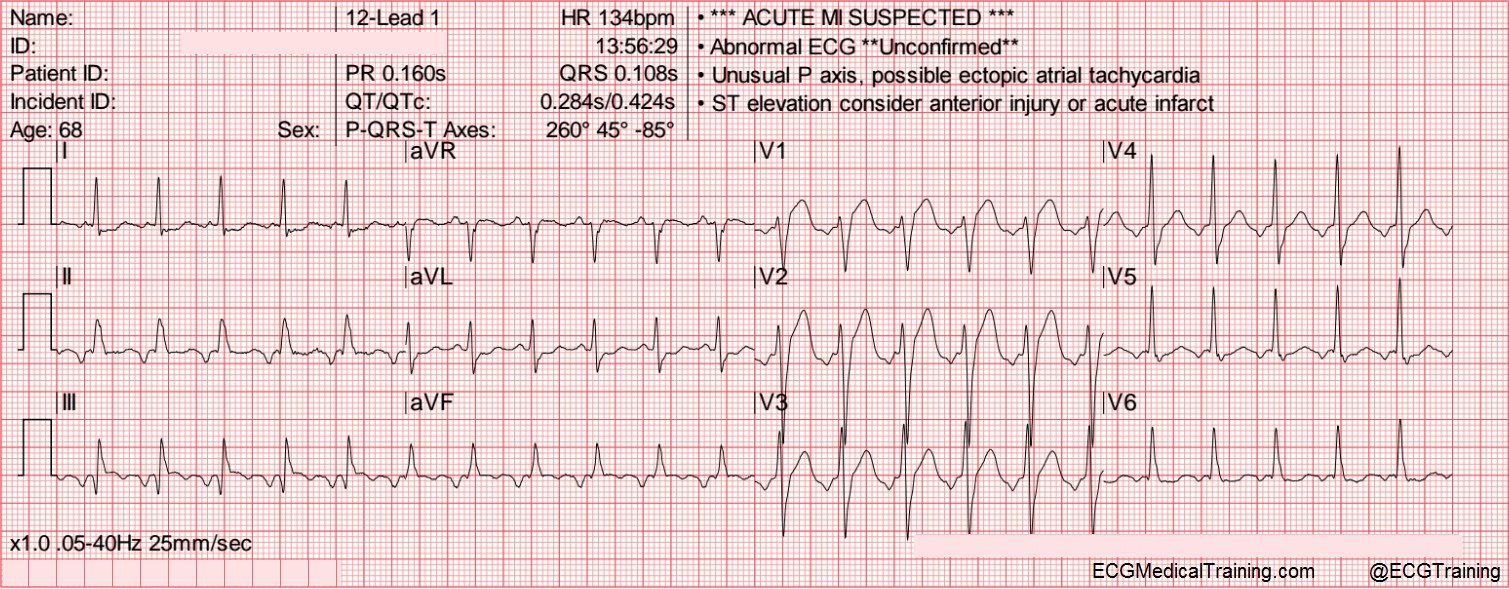 Usefulness Of The Qrst Angle When Diagnosing Acute Stemi Ecg