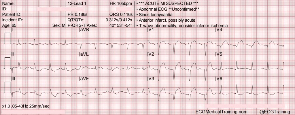 lad occlusion qrs t angle greater than 100 B wm