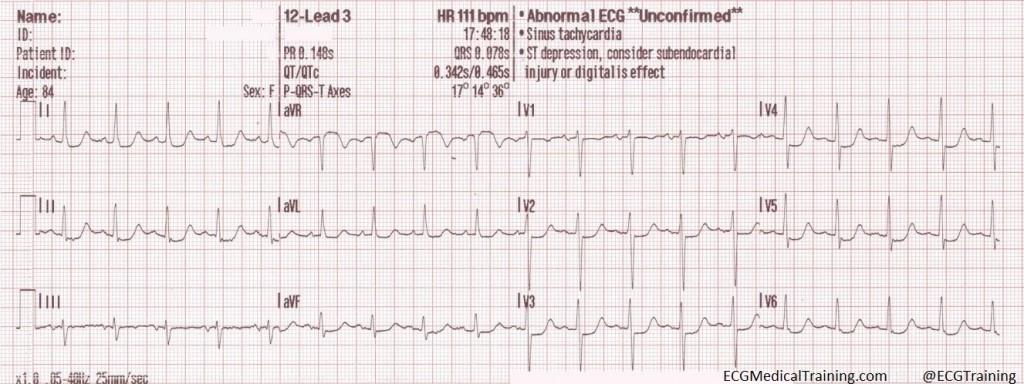 subendocardial ischemia 02 wm