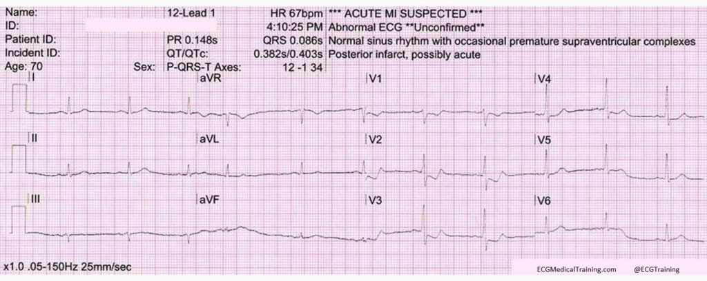 acute isolated posterior stemi wm