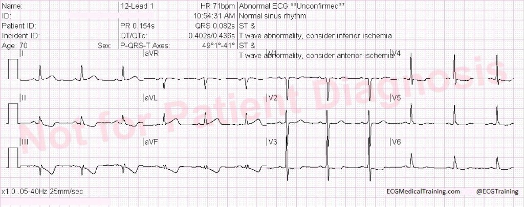 high lateral stemi 2 wm