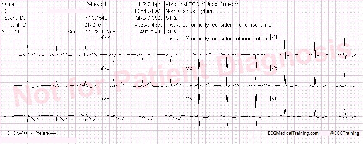 Ischemia does not localize! What does it mean? - ECG Medical Training