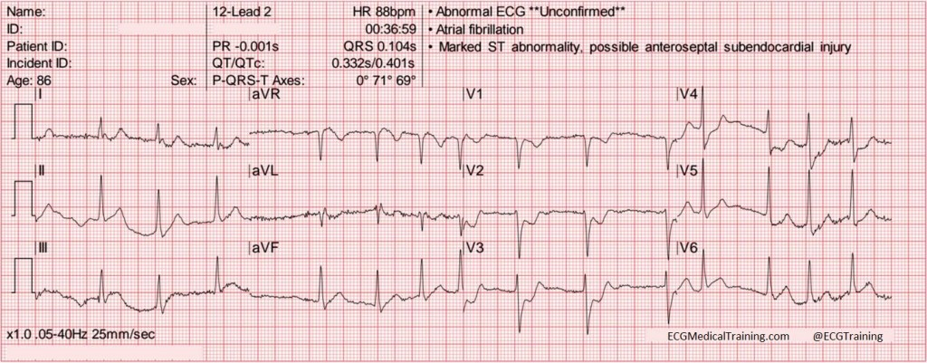 isolated posterior stemi 3 wm