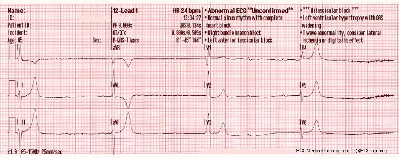 Third Degree Av Block With Ventricular Escape Rhythm At A Rate Of 24: Rhythm Identification Cheat Sheet At Alzheimers-prions.com