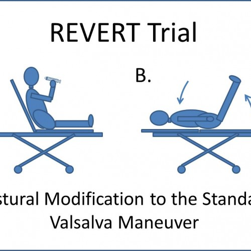 SVT, Adenosine, and Postural Modification to the Valsalva Maneuver (REVERT Trial)