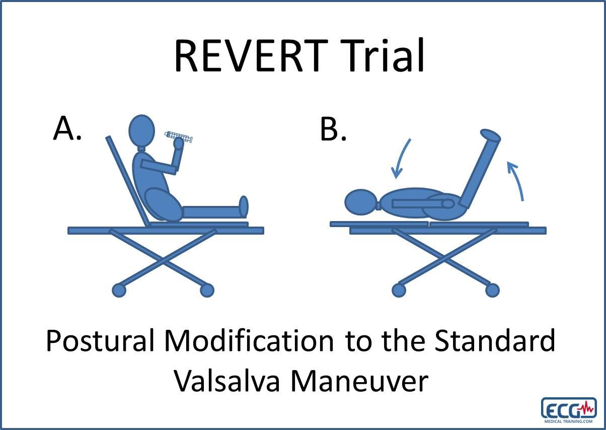 REVERT Trial SVT