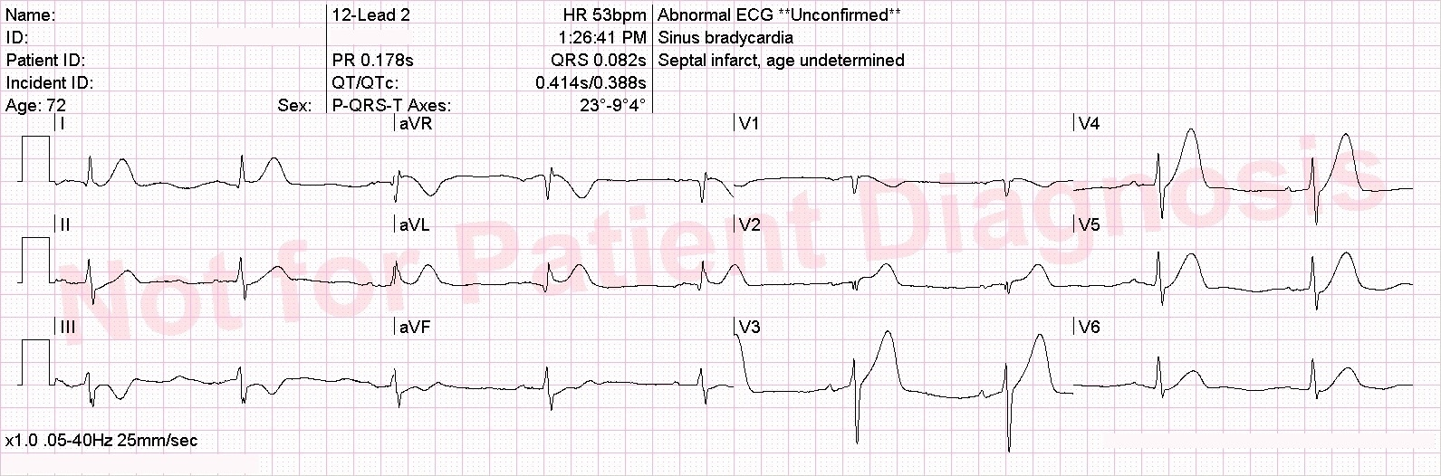 hyperacute LAD occlusion with reciprocal changes