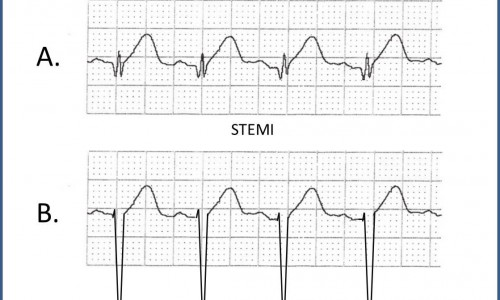 When Acute Anterior STEMI Does Not Meet Guidelines